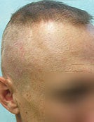 Head and Beard Hair FUE-BHT-SFET to fix follicular unit strip surgery before 195652