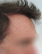Head and Beard Hair FUE-BHT-SFET to fix follicular unit strip surgery after 195652