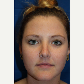 18-24 year old woman treated with Rhinoplasty before 3643570
