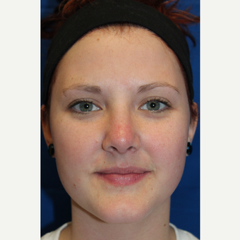 18-24 year old woman treated with Rhinoplasty after 3643570