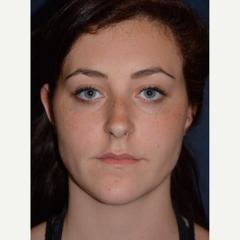 18-24 year old woman treated with Rhinoplasty before 3466893