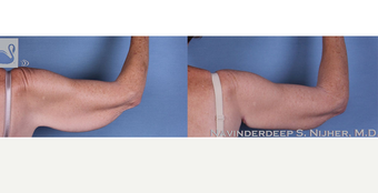 55-64 year old woman treated with Arm Lift after 3770113