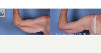 55-64 year old woman treated with Arm Lift before 3770113