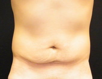 Abdominoplasty before 1335759