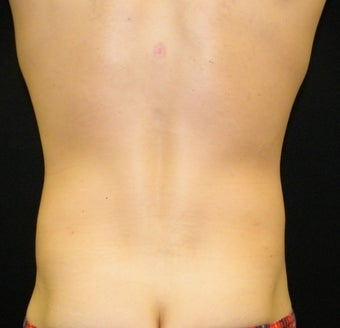 Abdominoplasty 1335759