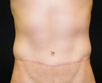 Abdominoplasty after 1335759