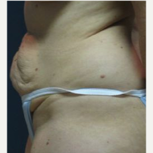 Tummy Tuck before 3720525