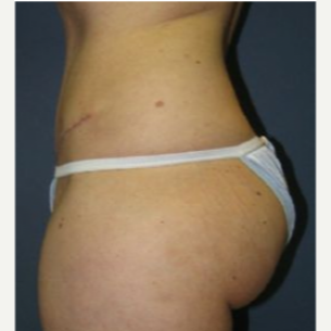 Tummy Tuck after 3720525