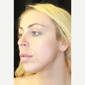 18-24 year old woman treated with Facial Feminization Surgery before 3741536