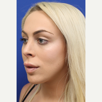 18-24 year old woman treated with Facial Feminization Surgery after 3741536