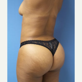 45-54 year old woman treated with Brazilian Butt Lift 1988220