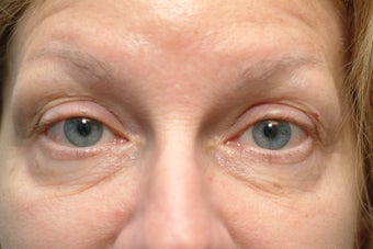 60 year old women with excess skin of the upper and excess skin and fat on the lower eyelid
