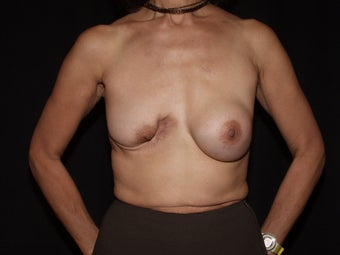55 year old breast cancer survivor seeking breast rescue for failed breast reconstruction procedure before 1288995