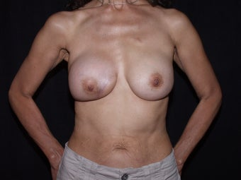 55 year old breast cancer survivor seeking breast rescue for failed breast reconstruction procedure after 1288995
