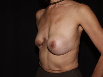 55 year old breast cancer survivor seeking breast rescue for failed breast reconstruction procedure 1288995