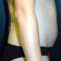 26 year old woman treated with Tummy Tuck after 3578457