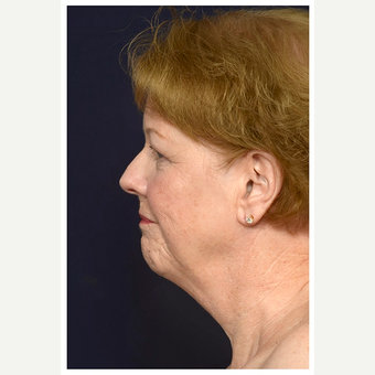 65-74 year old woman treated with Lower Face Lift