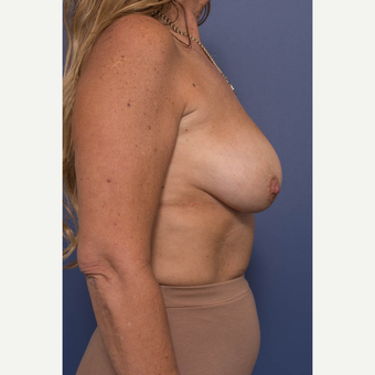 45-54 year old woman treated with Breast Lift with Implants before 3739089