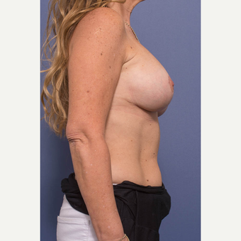 45-54 year old woman treated with Breast Lift with Implants after 3739089