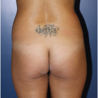 18-24 year old woman treated with Brazilian Butt Lift before 3695795