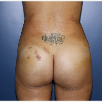 18-24 year old woman treated with Brazilian Butt Lift after 3695795