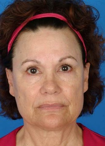 60 year old female treated with Ultherapy for neck, jawline, brows and lines around her mouth. before 1173992