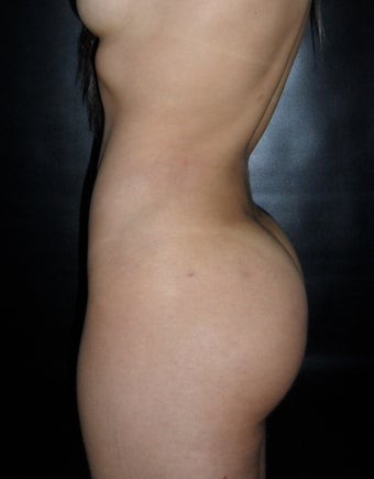 liposculpture  1254371