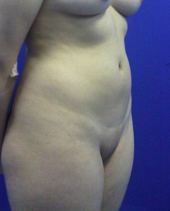 liposculpture  before 1254371