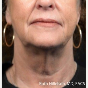 55-64 year old woman treated with Thermage