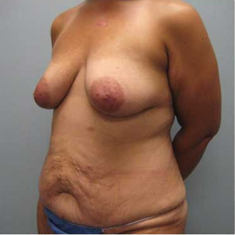 37 year old woman treated with Body Lift before 3680212