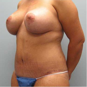 37 year old woman treated with Body Lift after 3680212