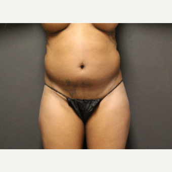 35-44 year old woman treated with Smart Lipo before 3286899