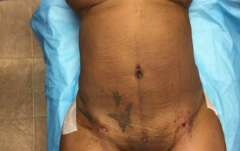 35-44 year old woman treated with Smart Lipo after 3286899