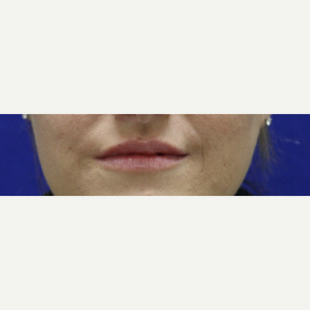 25-34 year old woman treated with Restylane Lyft after 3384518