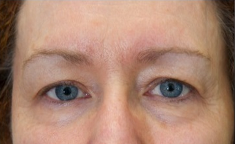 Exilis Elite- Female Treated for Under Eye Bags