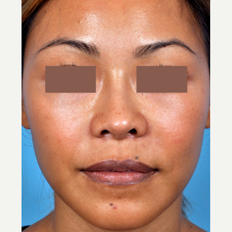 35-44 year old woman treated with Rhinoplasty after 3815652
