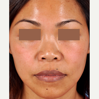 35-44 year old woman treated with Rhinoplasty before 3815652