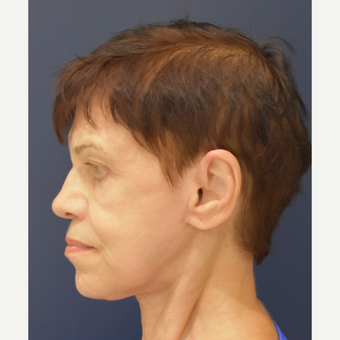 65-74 year old woman treated with Lower Face Lift after 3449019