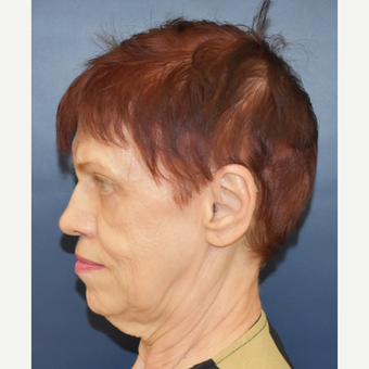 65-74 year old woman treated with Lower Face Lift before 3449019