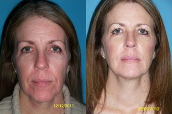 Laser resurfacing with filler and skin care before 1058133
