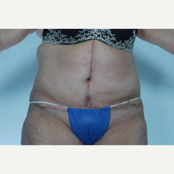 57 year old woman treated with Body Lift
