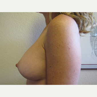 35-44 year old woman treated with Breast Augmentation after 3407151