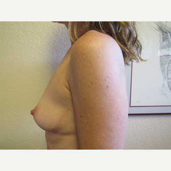 35-44 year old woman treated with Breast Augmentation before 3407151