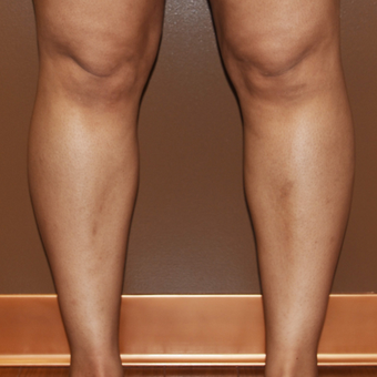 25-34 year old woman treated with Liposuction after 3234418