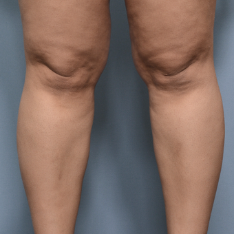 25-34 year old woman treated with Liposuction before 3234418