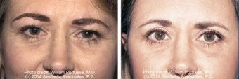 Blepharoplasty upper and lower eyes before 6638