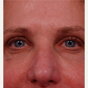55-64 year old woman treated with Restylane