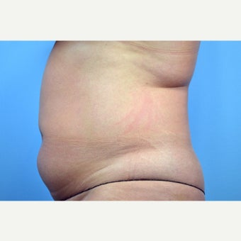 35-44 year old woman treated with Liposuction; 1 year post-op before 2671038