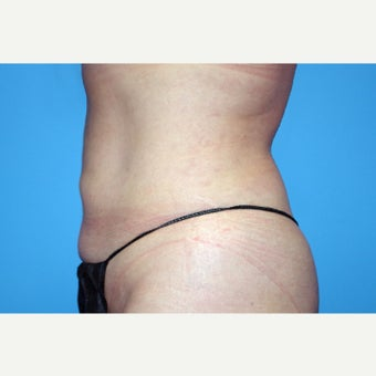 35-44 year old woman treated with Liposuction; 1 year post-op after 2671038
