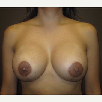 35-44 year old woman treated with Breast Lift with Implants after 3321152